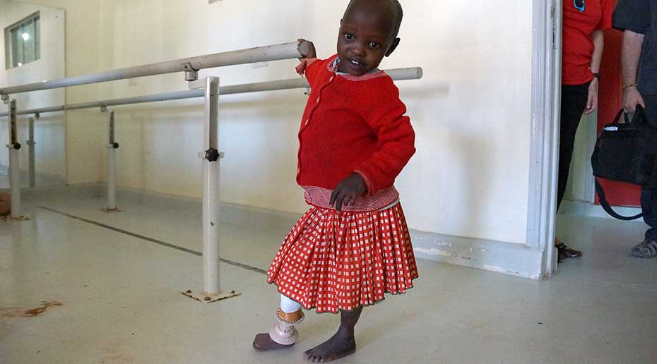 A small Ugandan girl holds on to a railing as she tries walking on her prosthetic leg.